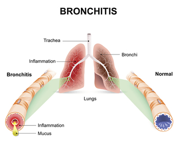 illustration of bronchitis